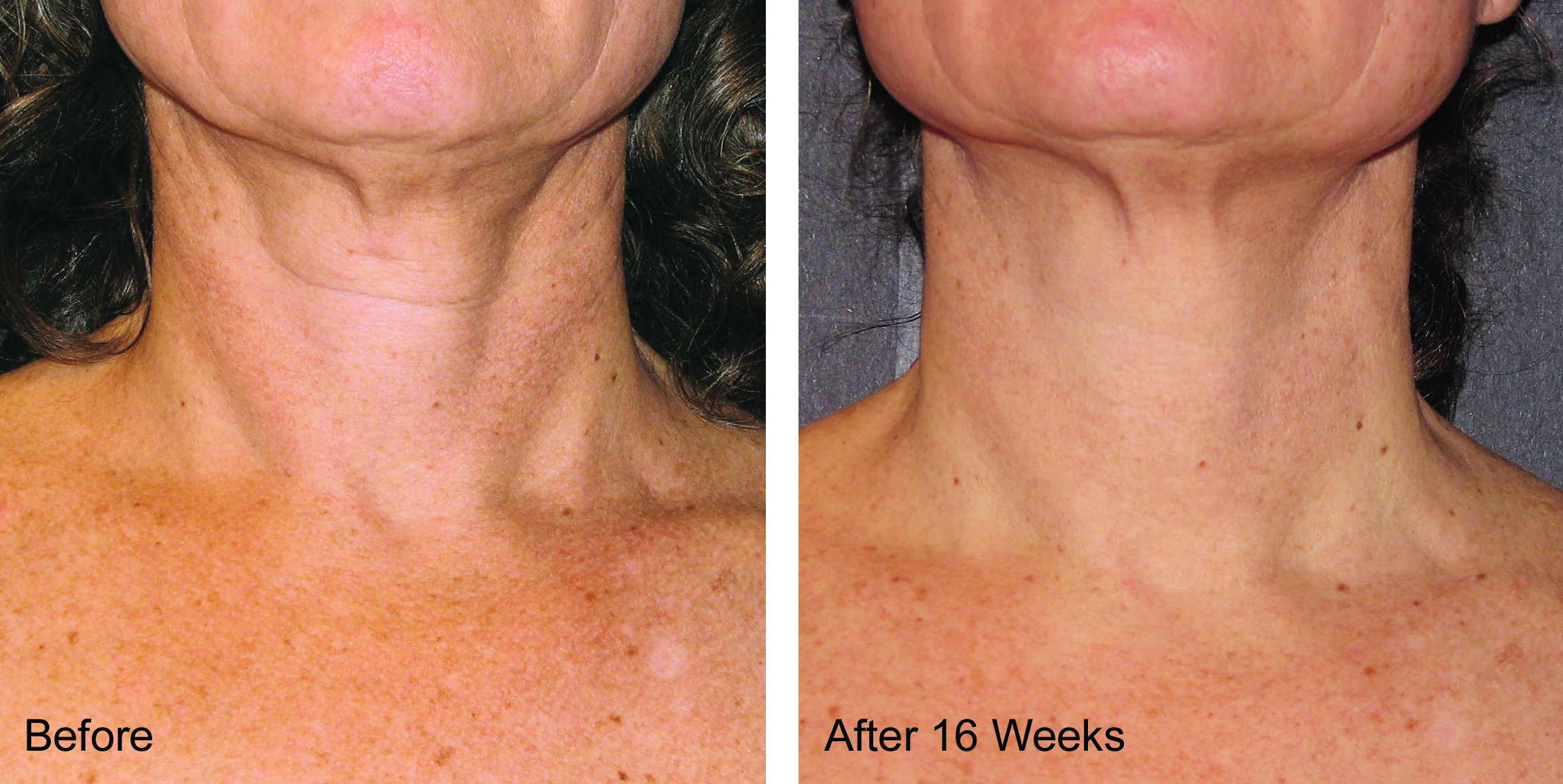 Neck and chest skin care